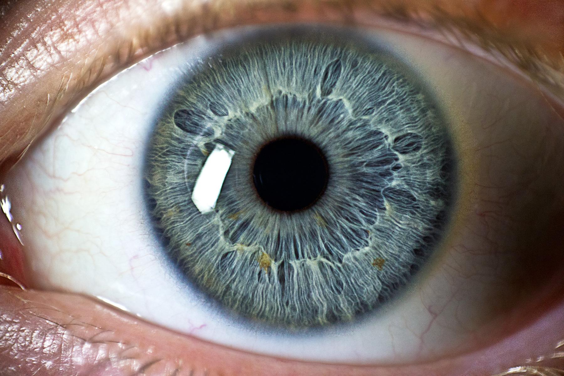 Как выглядит роговица глаза